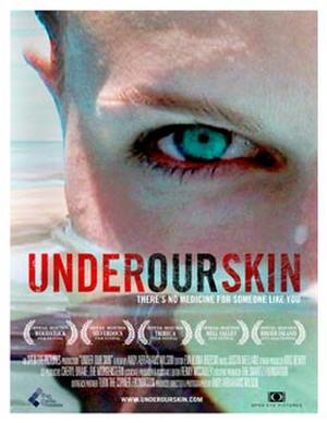 """Poster art for """"Under Our Skin."""""""
