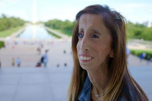 Lizzie Velasquez Tackles Cyberbullying with 'A Brave Heart'